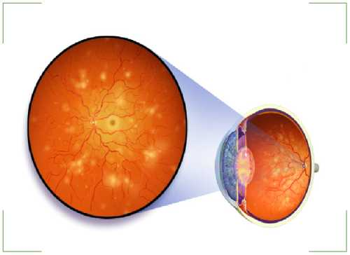 Ретинопатия сосудов сетчатки глаза – причины, симптомы и лечение