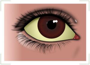 Почему при гепатите с желтеют глаза