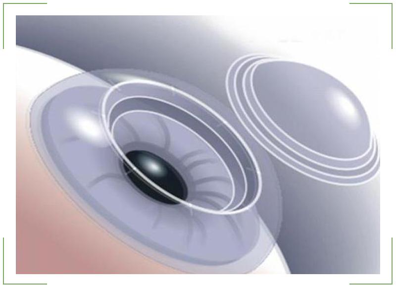 Что такое радиус кривизны в контактных линзах: как определить?