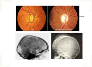 Как лечить зрительный нерв