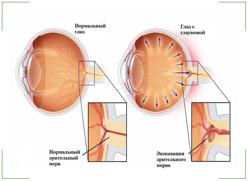 Что делает офтальмолог на осмотре
