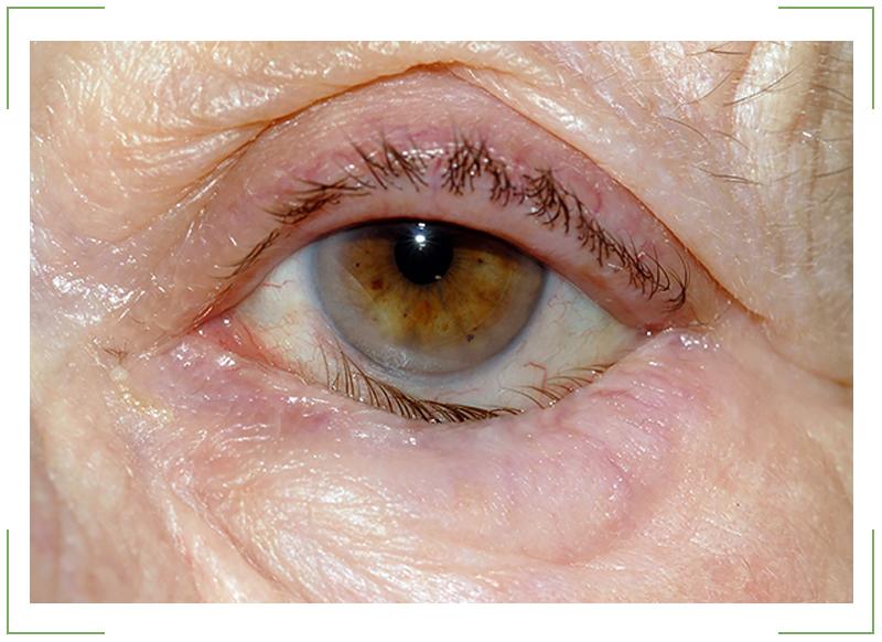 Болезнь-глаза-заворот-века