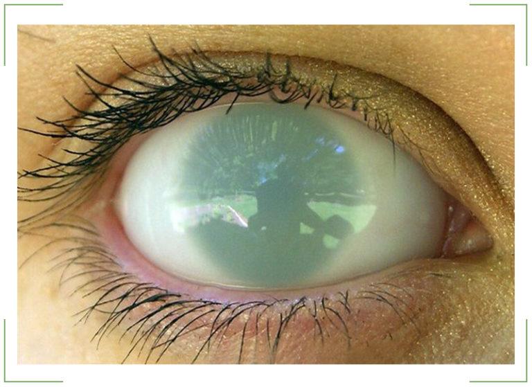 аквапарк картинка мутный глаз это совершенно означает