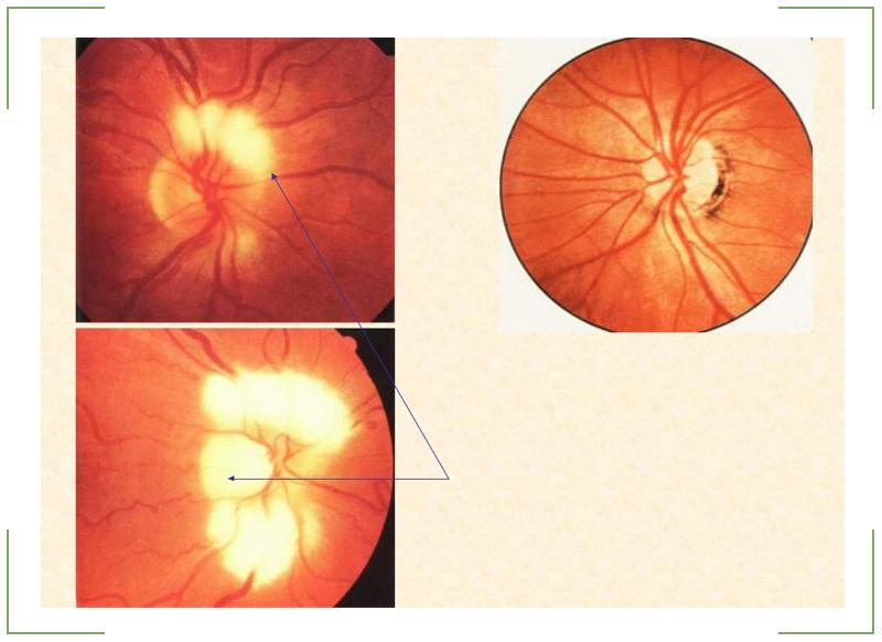 оптический нерв